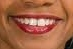 condoleezza rice mouth
