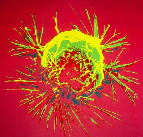 Image of a breast cancer cell courtesy the National Cancer Institute.