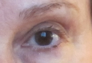 The Cataract Chronicles: Letting the Light Into That Other Eye
